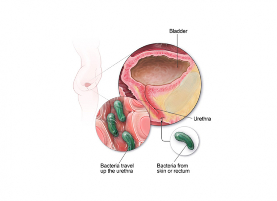 Is Women's Bladder Sterile?