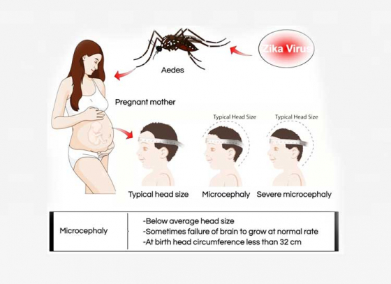 How Zika Virus Affects Pregnancy